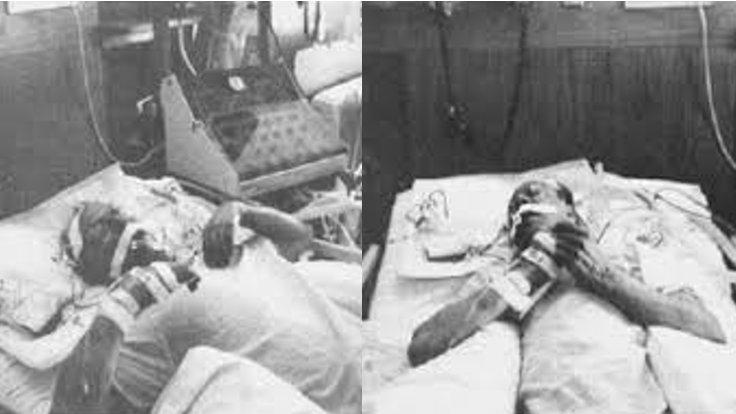 Yeni beyin ölümü gerçekleşmiş hastada Lazarus refleksi