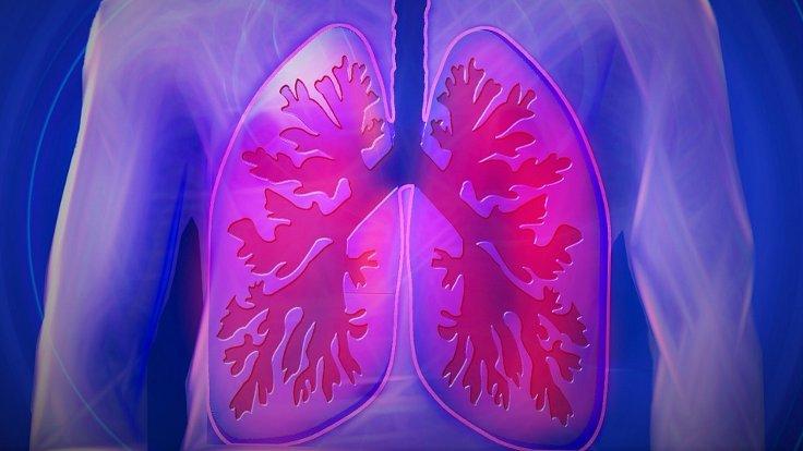 Yeni Bir Akciğer Kanseri Tipi Keşfedildi